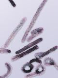 Marburg Virus Negative Stain Image of an Isolate of Marburg Virus