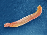 Members of the Class Aplacophora of the Phylum Mollusca are Worm-Like Animals That Lack a Shell