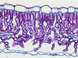 Cross-Section of an Elderberry (Sambucus) Sun Leaf  LM X65