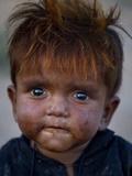 APTOPIX Pakistan Poverty Day