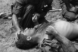 Vietnam War Us Marine Wounded by a Viet Cong Booby Trap is Comforted by a Fellow Marine  1967