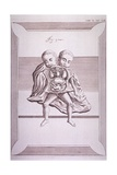 Conjoined Twins with Common Torso and Limbs  and the Two Heads  18th C Print