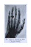 Konrad Roentgen's X-Ray of the Hand of Showing Bones and the Ring  1895