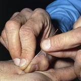 Acupuncture Needle Insertion Technique with Rotation