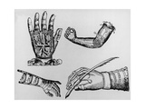 Selection of 16th Century Artificial Arms & Hands