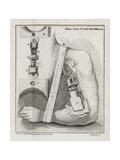 Bone-setting Mechanism  18th Century