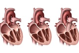 Heart Valves  Artwork