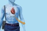 Mechanical Heart Pump  Artwork