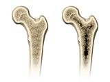 Osteoporosis  Artwork