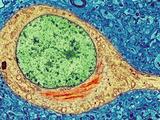 Alzheimer's Disease Brain Cell  TEM
