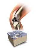 Damaged Knee  Artwork