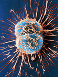 Cervical Cancer Cells Dividing