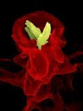 Macrophage Engulfing TB Bacteria  SEM