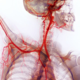 Neck And Shoulder Arteries  X-ray