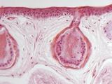 Frog Skin Glands  Light Micrograph