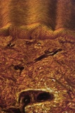 Human Skin  Light Micrograph