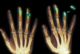 Fingertip Laceration Injuries  X-rays