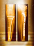 Pinned Broken Leg  X-rays