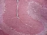 Cerebellum Tissue  Light Micrograph