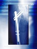 Pinned Broken Leg  X-ray