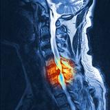 Slipped Disc  MRI Scan