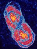 Coxiella Burnetti Bacterium Dividing