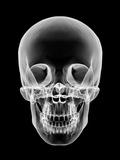 Human Skull  X-ray Artwork