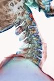 Neck Vertebrae Flexed  X-ray