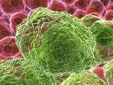 Cancer Cells  Artwork