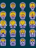 Healthy Brain  MRI Scans