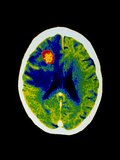 Coloured CT Scan of Brain Abscess In AIDS Patient
