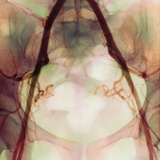 Coloured X-ray of Iliac Arteries To the Pelvis