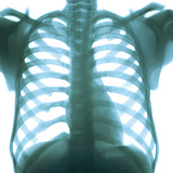 Chest X-ray of a Healthy Human Heart