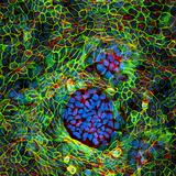 Cancer Cells  Light Micrograph