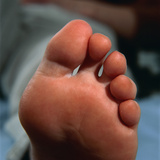 Healthy Toes And Sole of a Woman's Foot