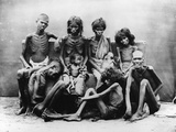 Victims of the Madras Famine  1877