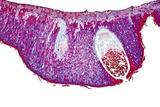 Pear Rust Fungus  Light Micrograph
