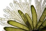 Mnium Moss  Light Micrograph