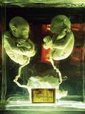 Foetal Gibon Twins
