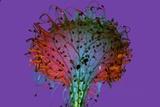 Common Sundew  Light Micrograph