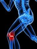 Knee Pain  Conceptual Artwork