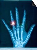 X-ray of hand with diamond ring