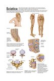 Medical Chart Showing the Signs and Symptoms of Sciatica