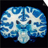 Brain  Coronal Section  Grey Matter Stained Blue