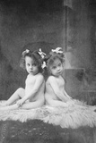 Daisy Hilton and Violet Hilton  Conjoined Twins  First Toured in Britain in 1911  at Age 3