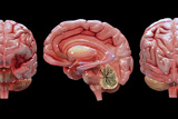 3D Rendering of Human Brain