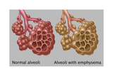 Normal vs Emphysematous Alveoli