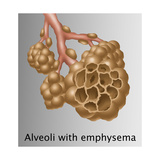Alveoli with Emphysema