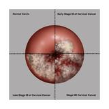 Cervical Cancer Progression  Illustration