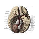 Arteries of the Brain